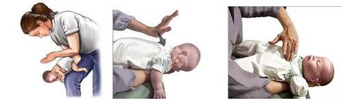 Hai cách sơ cứu nhanh khi trẻ bị hóc dị vật cha mẹ cần biết 3