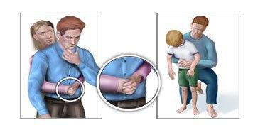 Hai cách sơ cứu nhanh khi trẻ bị hóc dị vật cha mẹ cần biết 4