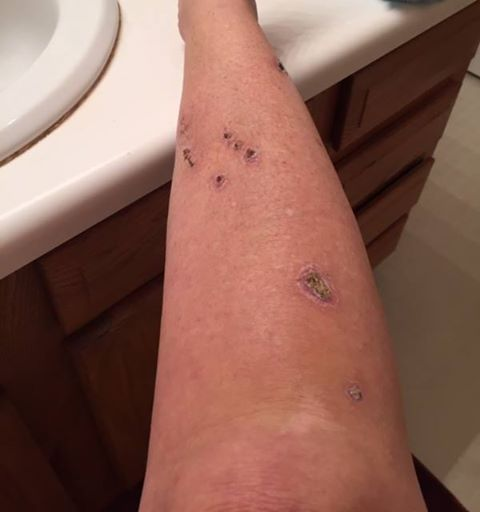 ung thư da vì tắm nắng
