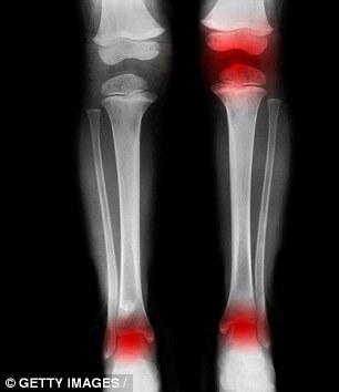 hội chứng chân voi