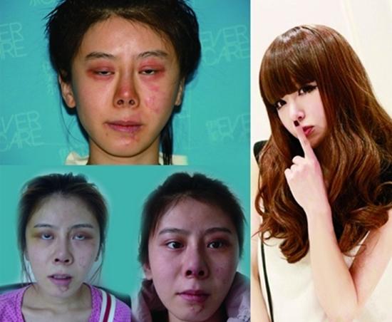 Thiếu nữ xinh đẹp hóa xấu thậm tệ sau 9 lần phẫu thuật 1