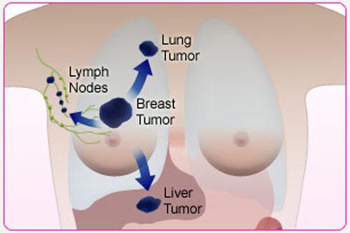 Nhận biết các giai đoạn phát triển của bệnh ung thư vú 5