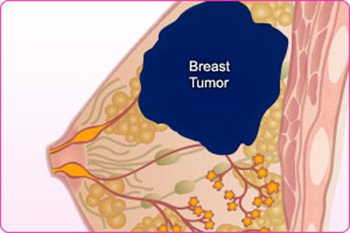 Nhận biết các giai đoạn phát triển của bệnh ung thư vú 4