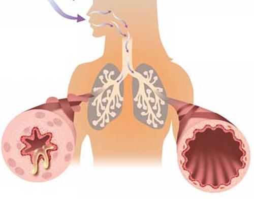 8 con đường dẫn tới bệnh tim mạch mà bạn cần biết 1