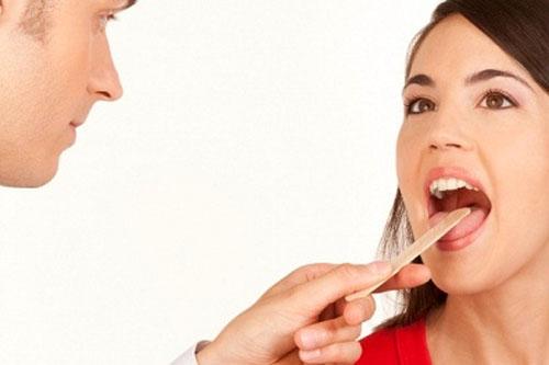 Đoán bệnh qua những đặc điểm bất thường của lưỡi 1