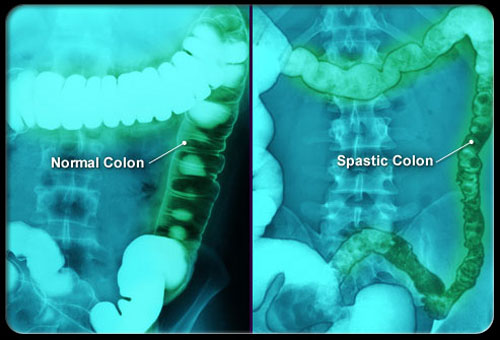 Điểm mặt tất cả nguyên nhân khiến bạn bị đau vùng xương chậu 2