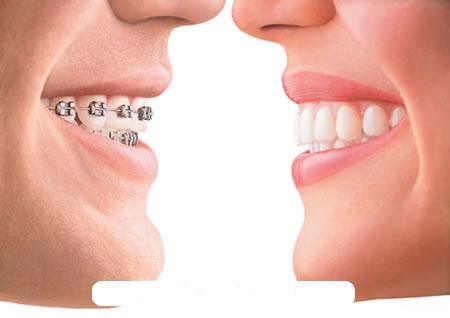 6 điều không thể bỏ qua khi niềng răng 1