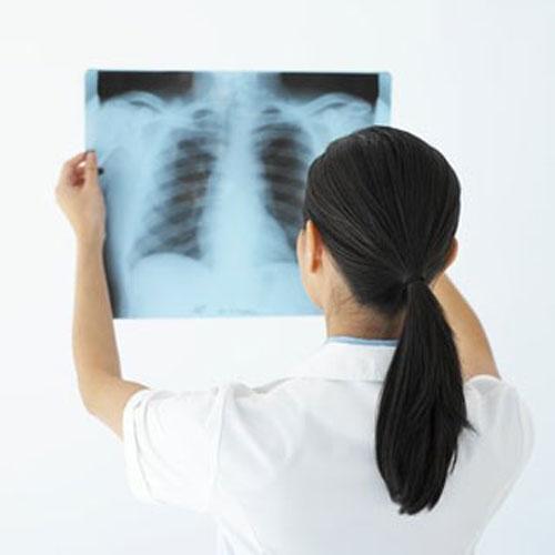 10 dấu hiệu cảnh báo sớm bệnh ung thư phổi 4