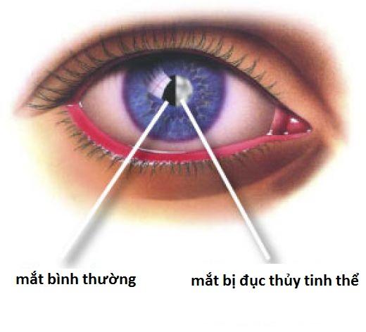 Những bệnh ở mắt có thể dẫn đến mù lòa 1