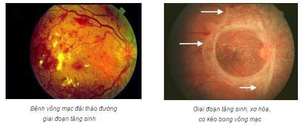 Những bệnh ở mắt có thể dẫn đến mù lòa 2