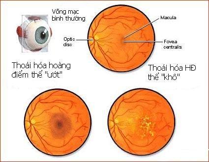 Những bệnh ở mắt có thể dẫn đến mù lòa 4
