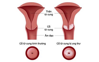 9 câu hỏi về ung thư cổ tử cung chị em cần biết 1