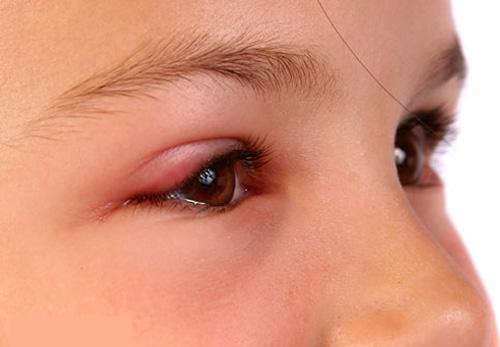 Viêm bờ mi: căn bệnh nhiều người chưa biết 1