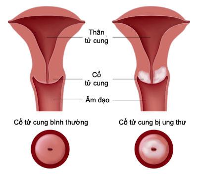 Một vài triệu chứng nhận biết ung thư cổ tử cung 1