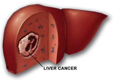 Những điều cần biết để phòng bệnh ung thư gan 1