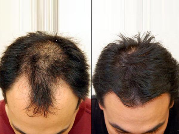 Lộ đầu hói trong Sao Nhập Ngũ, ông bố đơn thân Ưng Đại Vệ cấy 2 ngàn sợi tóc để thoát cảnh ít tóc - Ảnh 8.