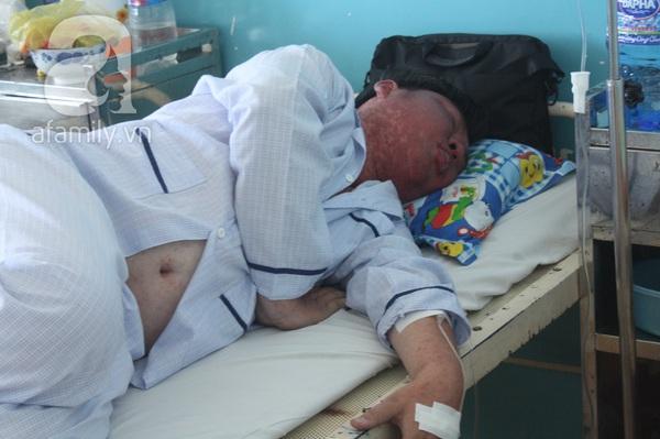 TP.HCM: Người lớn lao đao vì bệnh sởi 2