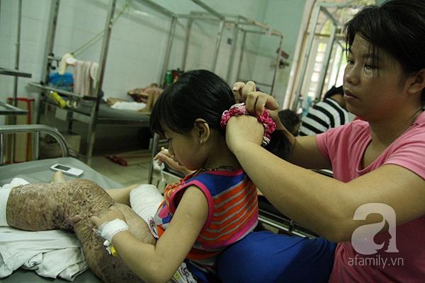 Bé gái 10 tuổi mắc bệnh