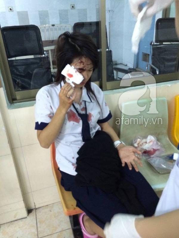 """Tranh cãi về việc """"hốt phân chó"""", một nữ sinh bị lao công đánh bê bết máu  5"""