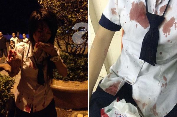 """Tranh cãi về việc """"hốt phân chó"""", một nữ sinh bị lao công đánh bê bết máu  4"""