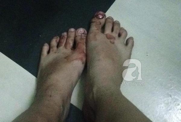 """Tranh cãi về việc """"hốt phân chó"""", một nữ sinh bị lao công đánh bê bết máu  7"""