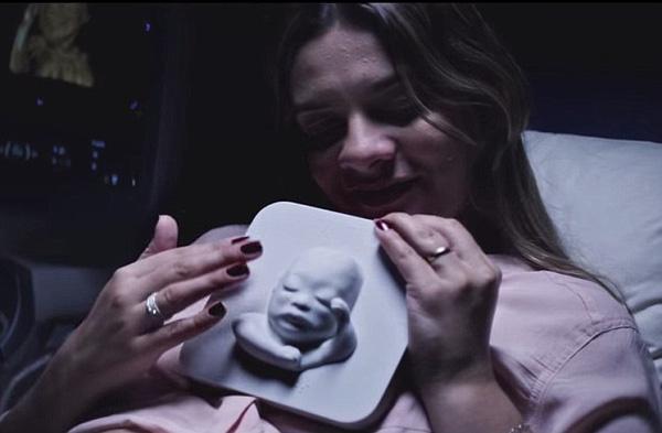 Cảm động mẹ bầu khiếm thị lần đầu tiên thấy hình ảnh siêu âm con 2