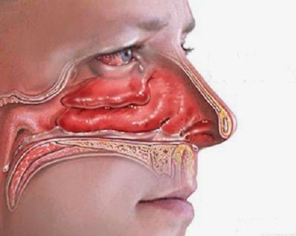 niêm mạc mũi bị phù nề