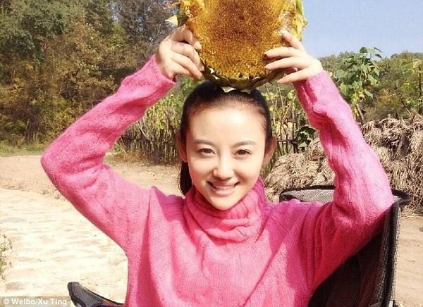 Nữ diễn viên 26 tuổi đã trải qua quá trình giác hơi vô cùng đau đớn vì nghĩ rằng có thể chữa trị bệnh ung thư.