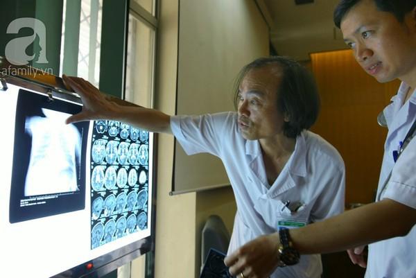 Giúp con vượt qua đợt dịch viêm não nhờ phòng bệnh đúng cách 2