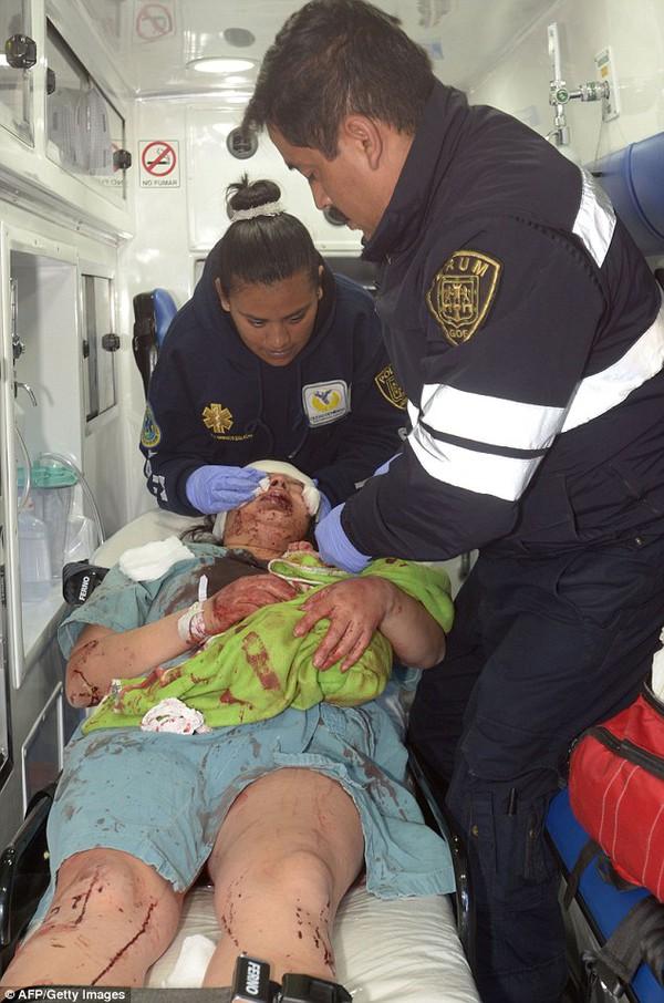 Nổ xe chở gas tại bệnh viện nhi Mexico: Mẹ bị thương nặng vẫn ôm chặt con mới sinh 3