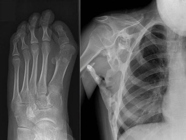 Cô gái có 2 bộ xương trong người 3