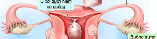 Chị em cảnh giác với nguy cơ dính buồng tử cung 2