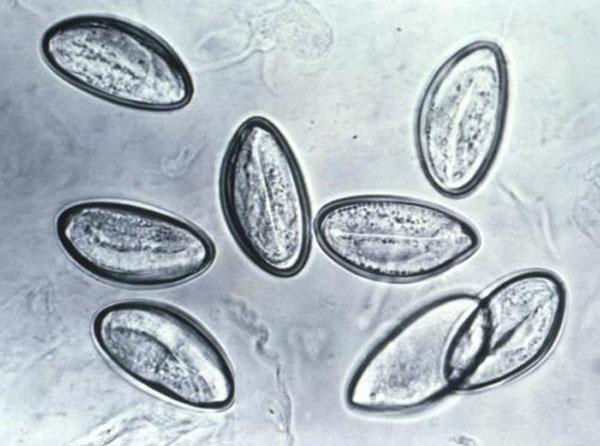 Hình ảnh giật mình về 10 kí sinh trùng dễ xâm nhập vào cơ thể  7