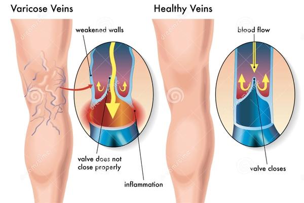 Suy giãn tĩnh mạch chân: bệnh không thể coi thường 1