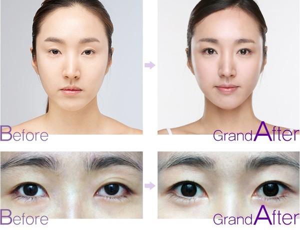 phẫu thuật mắt to trước và sau