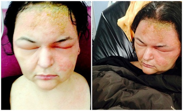 Một phụ nữ suýt chết vì dị ứng thuốc nhuộm tóc 1