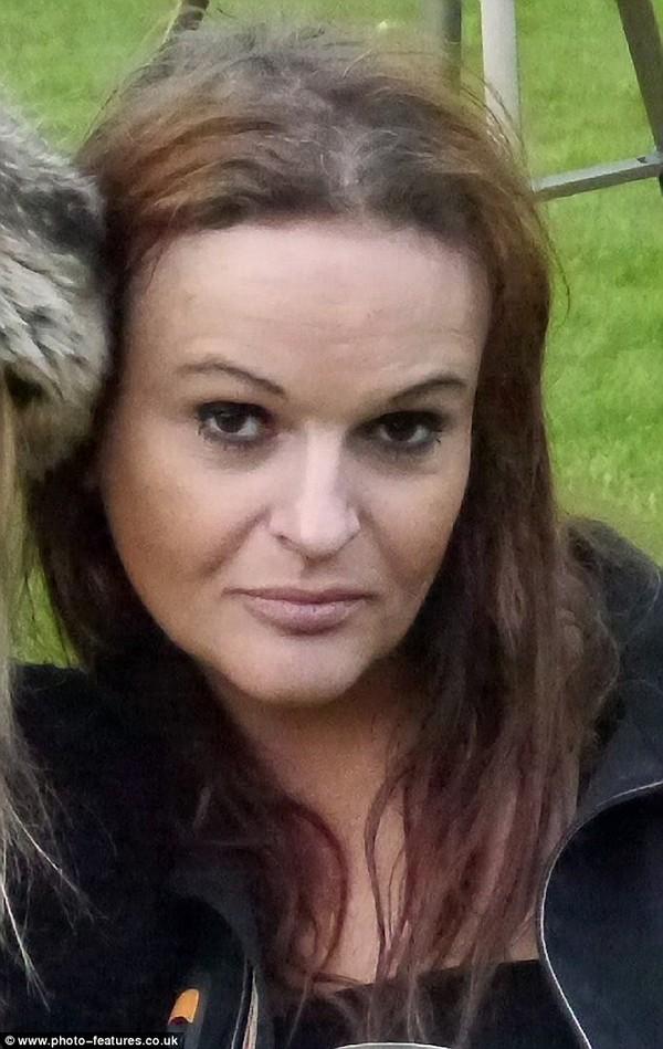 Một phụ nữ suýt chết vì dị ứng thuốc nhuộm tóc 2