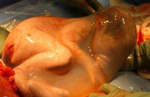 Thú vị với chùm ảnh em bé trong những ca mổ lấy thai 2