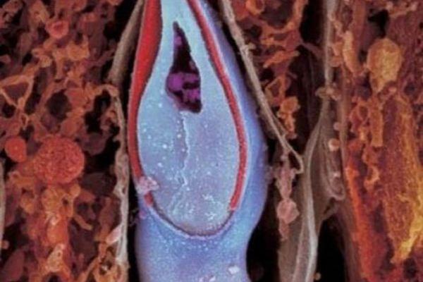Sự lớn lên kì diệu của bào thai trong bụng mẹ 7