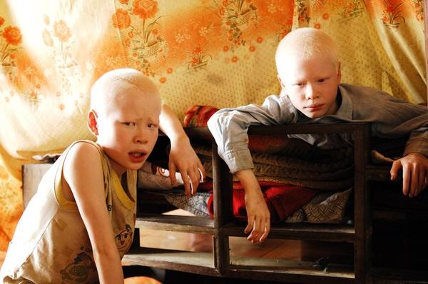 Bộ ảnh độc về thế giới của cặp song sinh bạch tạng ở Hà Tĩnh 1