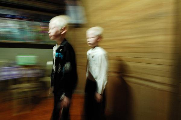 Bộ ảnh độc về thế giới của cặp song sinh bạch tạng ở Hà Tĩnh 10