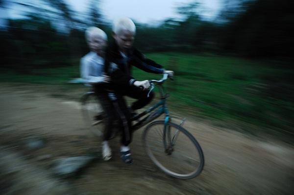 Bộ ảnh độc về thế giới của cặp song sinh bạch tạng ở Hà Tĩnh 12