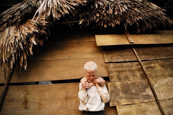 Bộ ảnh độc về thế giới của cặp song sinh bạch tạng ở Hà Tĩnh 15