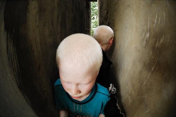 Bộ ảnh độc về thế giới của cặp song sinh bạch tạng ở Hà Tĩnh 25