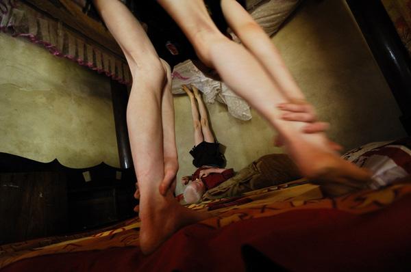 Bộ ảnh độc về thế giới của cặp song sinh bạch tạng ở Hà Tĩnh 6