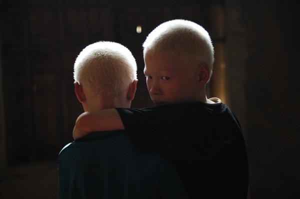 Bộ ảnh độc về thế giới của cặp song sinh bạch tạng ở Hà Tĩnh 7