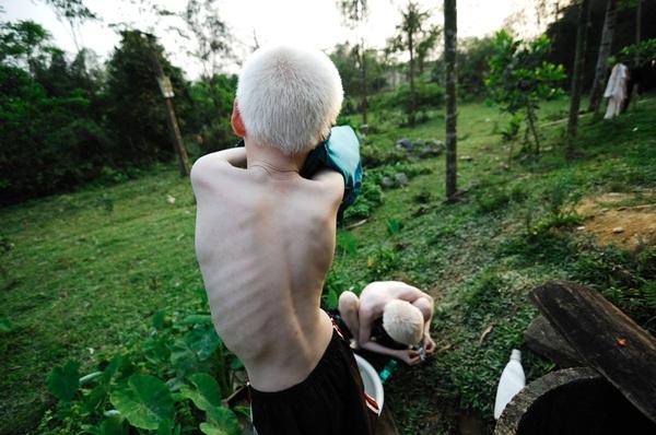 Bộ ảnh độc về thế giới của cặp song sinh bạch tạng ở Hà Tĩnh 8