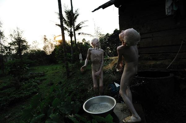 Bộ ảnh độc về thế giới của cặp song sinh bạch tạng ở Hà Tĩnh 9