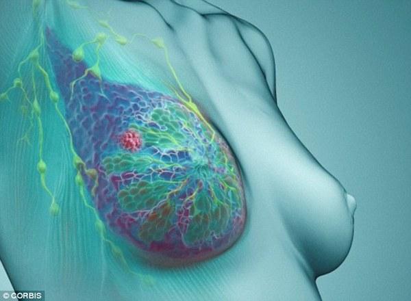 Phát hiện mới về nguyên nhân gây ung thư vú 1