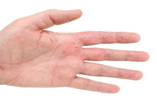 Những bí mật về tình trạng sức khỏe được bộc lộ qua bàn tay bạn - Ảnh 2.